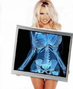 Pamela Anderson X-Ray